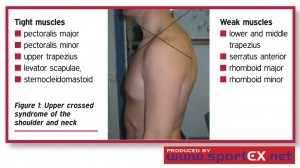 upper_crossed_syndrome_of_the_shoulder_and_neck-300x168